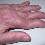 Figura 3. Artritis distal en mano izquierda.
