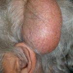 Figura 1. Gran quiste triquilemal parietal izquierdo.