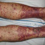 """Figura 2. Clínica. Vasculitis leucocitoclástica: se aprecian pápulas purpúricas de """"púrpura palpable"""" que confluyen y son más violáceas en la zona más distal. Ampollas y costras en maléolo interno derecho."""