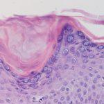 Figura 1. Histología. Pitiriasis rubra pilaris.