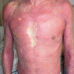 Figura 2. Clínica. Eritrodermia psoriásica: afectación de más del 90% de la superficie cutánea.
