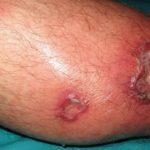 Figura 2. Forma ulcerativa de leishmaniasis del Nuevo Mundo.