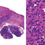 Figura 3. Histopatología del Botón de Oriente mostrando infiltrados nodulares en la dermis. A gran aumento (segunda imagen) se observa como muchos de estos histiocitos contienen leishmanias en su citoplasma.
