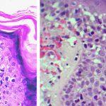 Figura 2. Histología de la micosis fungoide inicial con exocitosis de linfocitos atípicos en epidermis, con poca espongiosis.