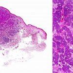 Figura 2. Estudio histológico a bajo y a medio aumento de un carcinoma de células de Merkel.